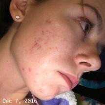 Dec 7 2016 - scarring 1
