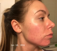 Chemical Peel - Day 7