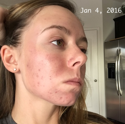 Chemical Peel - Day 1