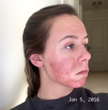 Chemical Peel - Day 2