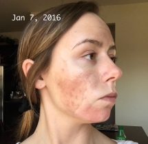 Chemical Peel - Day 4